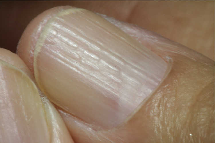 geribbelde nagel