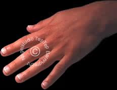 nagelbijten acrylnagels